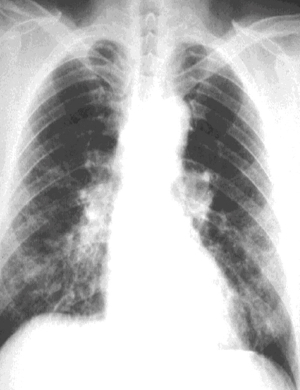 asbestosis diagnosis symptoms  does asbestosis cause lung cancer