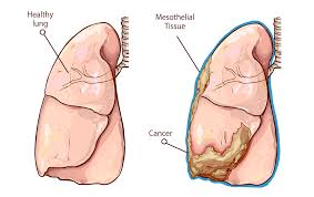 how does asbestos cause lung cancer mesothelioma