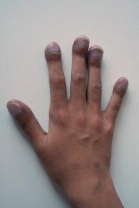 asbestosis symptoms widened fingertips and fingertoes clubbing