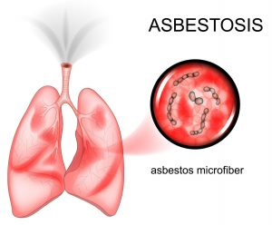 can asbestosis cause lung cancer or mesothelioma